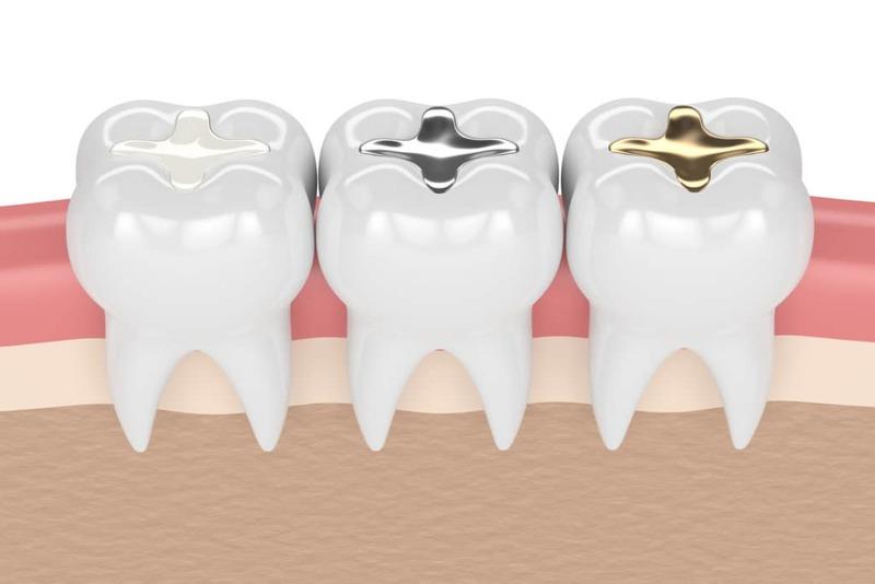 5 loại vật liệu trám răng được nhiều người dùng nhất