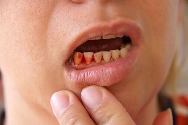 7 Mẹo điều trị chảy máu chân răng tại nhà ít tốn kém mà hiệu quả