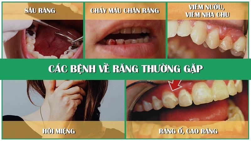 Hở chân răng