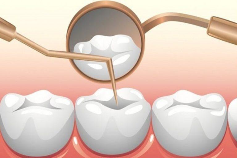 Trám răng bằng vật liệu sứ