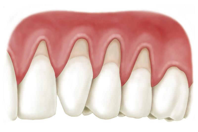 Hở chân răng là gì? Chữa hở chân răng bằng cách nào?
