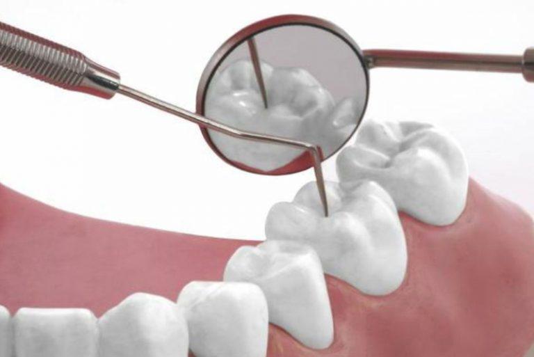 Trám răng với vật liệu nhựa Composite