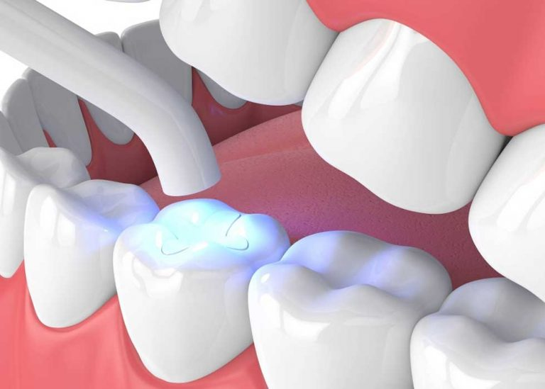 Nhược điểm của vật liệu trám răng nhựa Composite