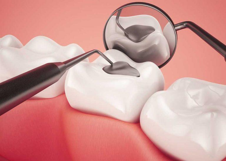 Vật liệu trám răng hỗn hợp bạc có thực sự an toàn?