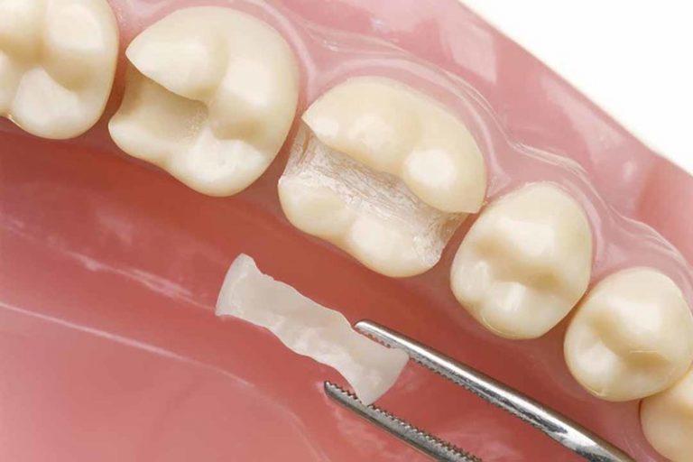 Trám răng bằng Lonomer thủy tinh